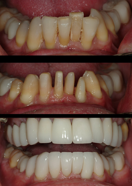 Short term ortho vs. veneers