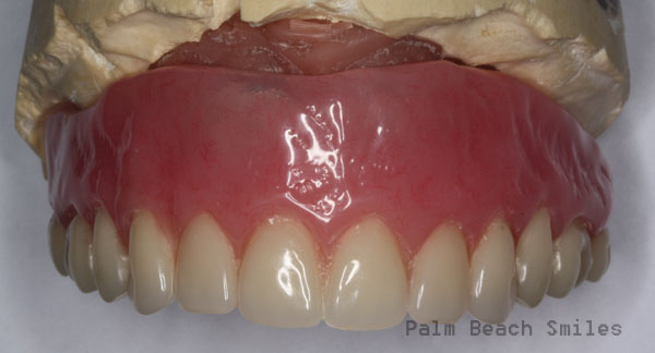 RL Implant Denture06