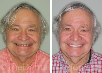 Dad's Smile Comps-2