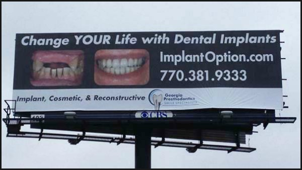 implant billboard