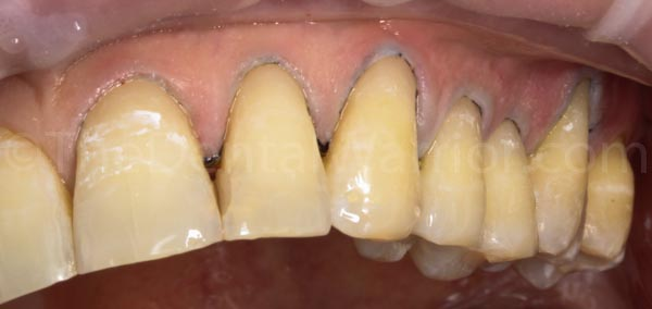 Composite restorations placed and initial finishing done with cord still in place.