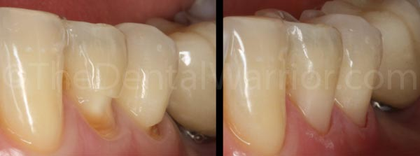 Teeth #s 20-21 before and after. Deep abfractions were trapping food and were sensitive.
