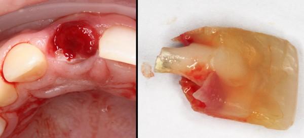 Gunnar-tooth