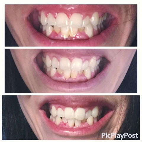 "This ""patient"" reported on the FB page that she was ""cleared"" by her hygienist and dentist.  She said she had ""NO gum disease."" What could possibly go wrong???"